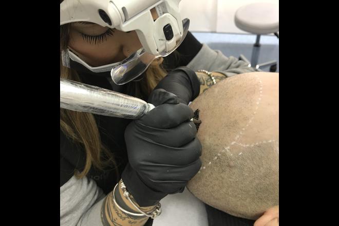 Giorgia Venuto a lavoro sulla Tricopigmentazione